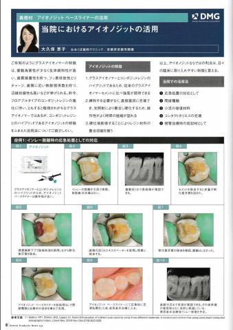 「YOSHIDA Dental Products News」に院長の記事が掲載されました