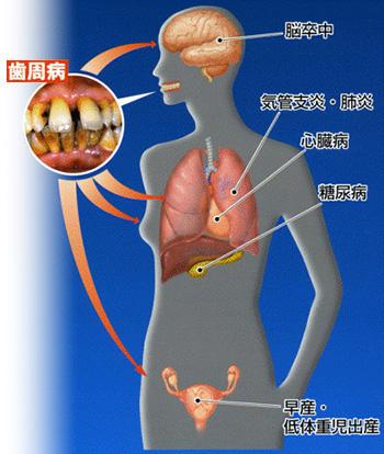 京都市左京区 おおくぼ歯科クリニック 歯周病治療