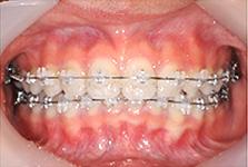 京都市左京区 おおくぼ歯科クリニックの矯正治療