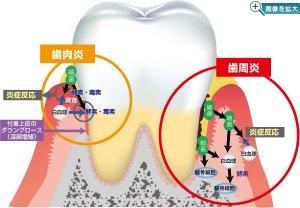 「歯肉炎」と「歯周炎」の違いとは??